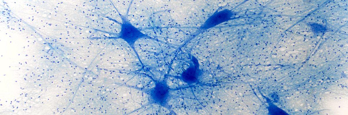 Bewegung & Neuroplastizität: Das Gehirn –  kein Muskel und doch unglaublich trainierbar