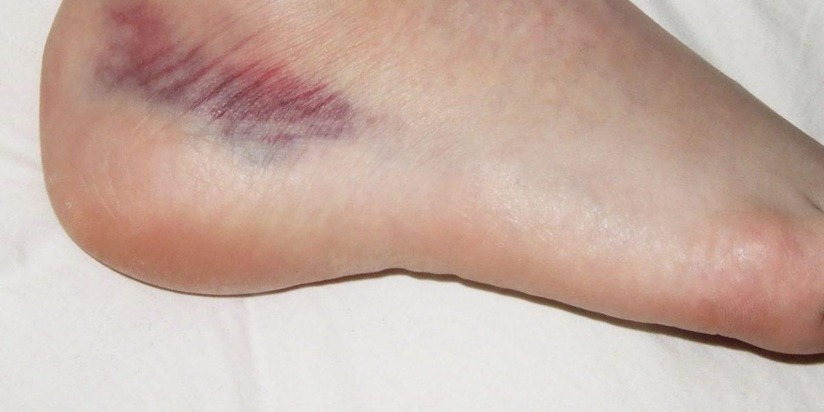 Knöcheldistorsionen: Physiotherapie bringt offenbar kaum etwas