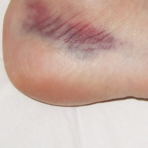 Knöcheldistorsion: Physiotherapie bringt offenbar kaum etwas