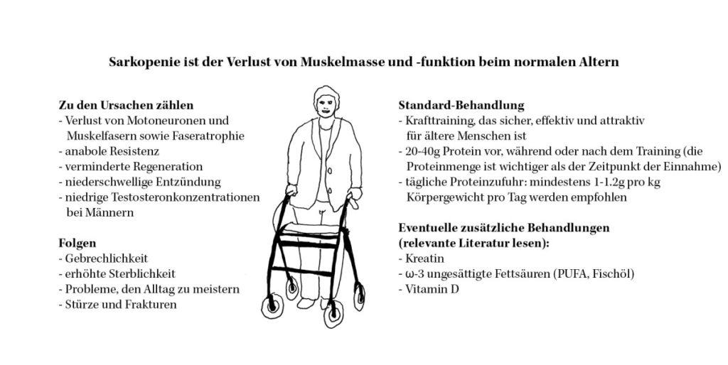 Bild Übersicht über Ursachen, Folgen und Behandlung bei Sarkopenie