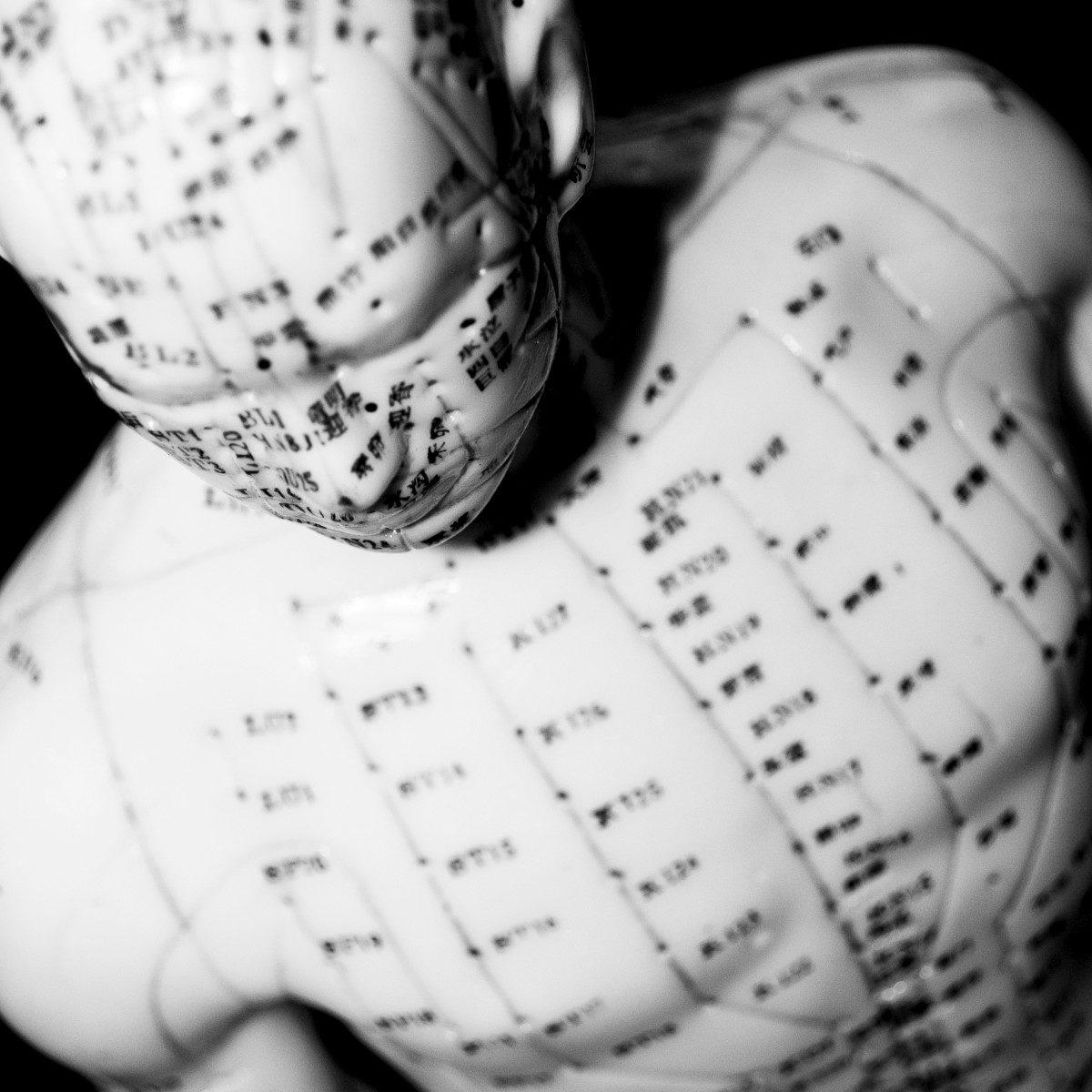 Triggerpunkttherapie: Den gordischen  Knoten lösen?