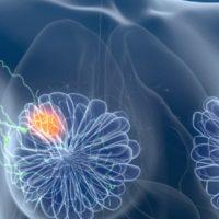 Der Einfluss von körperlichem Training auf das Immunsystem von Brustkrebspatienten