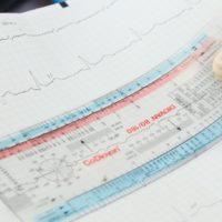 Neue internationale Empfehlungen zur EKG-Beurteilung bei Sportlern: Panta rhei oder Endpunkt?