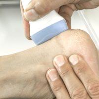 Tendinopathien der Achillessehne: Steroid- oder Plasma-Injektionen ergänzen exzentrisches Training