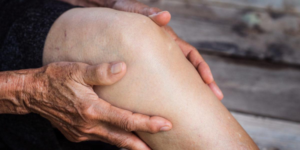 Kniearthrose-Schmerz lindern durch Selbst-Akupressur