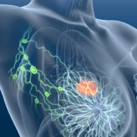 Körperliches Training günstig bei Brustkrebspatientinnen mit Lymphödemen