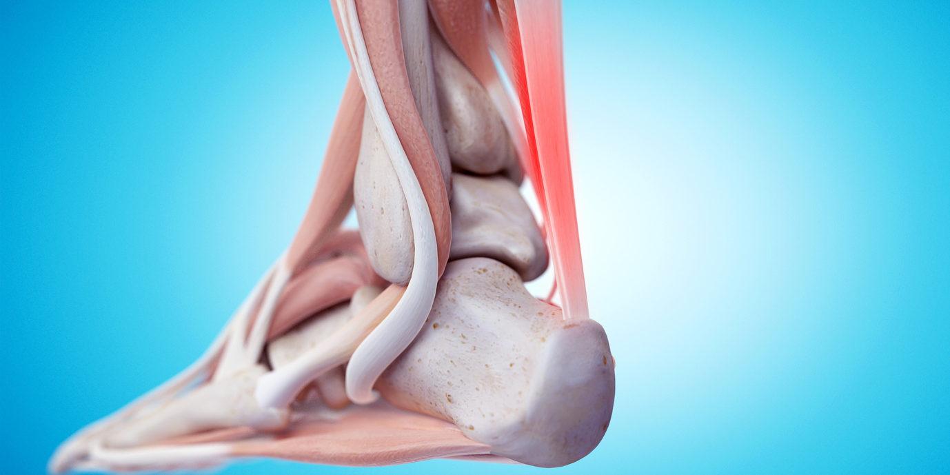 Spezielles Krafttraining bei  Achillessehnen-Tendinopathie: Welches ist am besten?