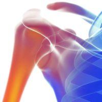 Bone Bruise und Stressfraktur: Knochen im Stress