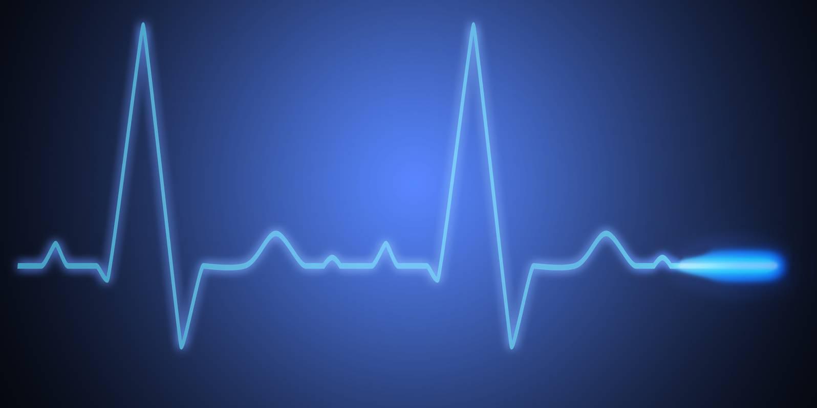 Validierung und Vergleich von drei verschiedenen Herzfrequenzmessverfahren bei der Leistungsdiagnostik auf dem Laufband