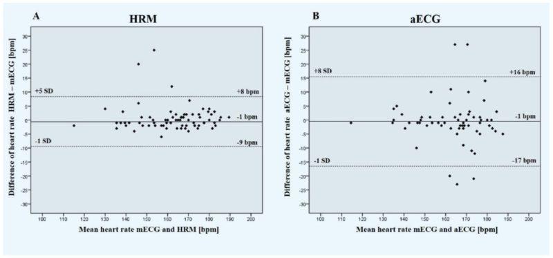 Bland-Altman-Plot der ermittelten Herzfrequenzen