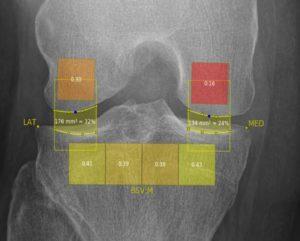 Digitale Röntgenbild-Analyse mit künstlicher Intelligenz zur Analyse von Osterarthrose