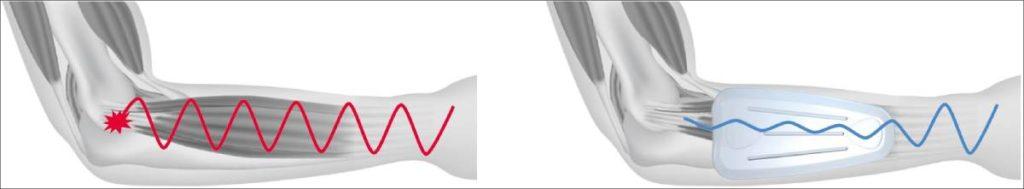 Das Wirkprinzip der Dynamics Plus Epicondylitisbandage – Dämpfung von Muskelvibrationen zur Entlastung der Sehnenursprünge am Epicondylus