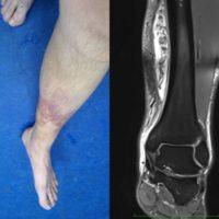 Systemische Enzymtherapie bei Sportverletzungen