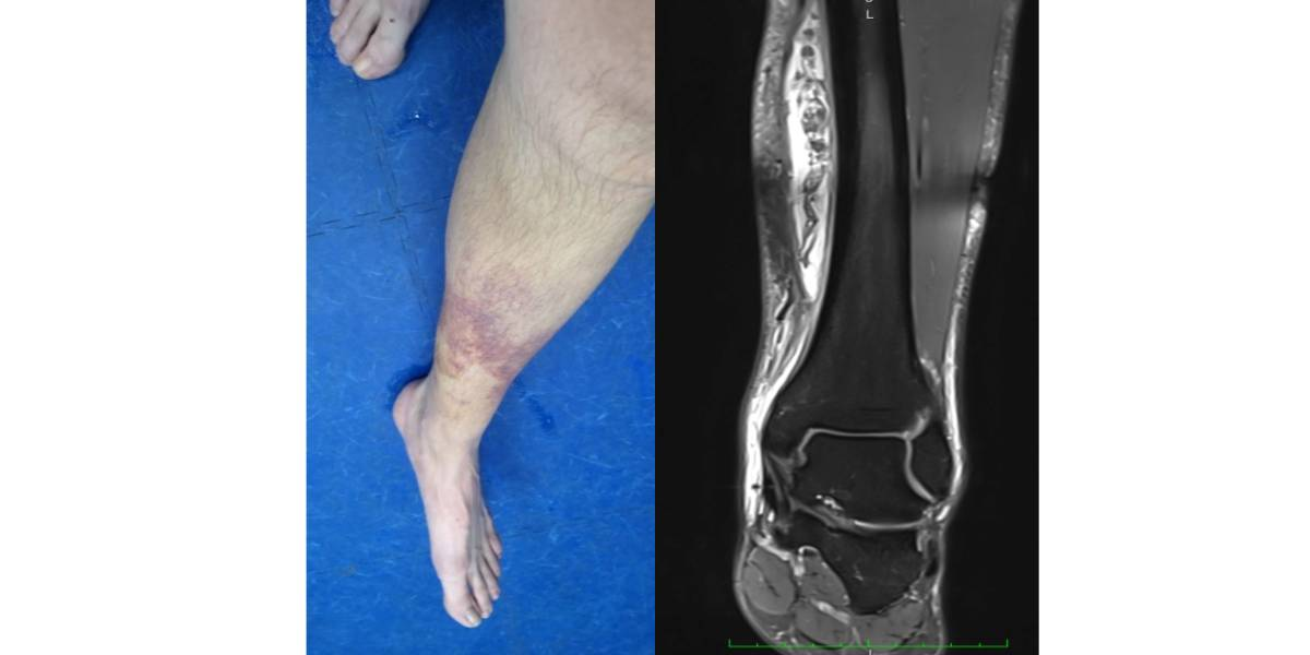 Systemische Enzymtherapie bei Sportverletzungen: Multimodales Schmerz- und Schwellungsmanagement für schnellen Therapieerfolg