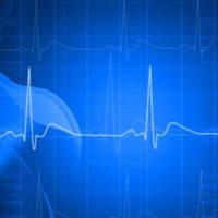 Zusammenhang zwischen Herzfrequenzerholung und aerobem Trainingsumfang. Eine Sub-Analyse der Euro-Ex Studie