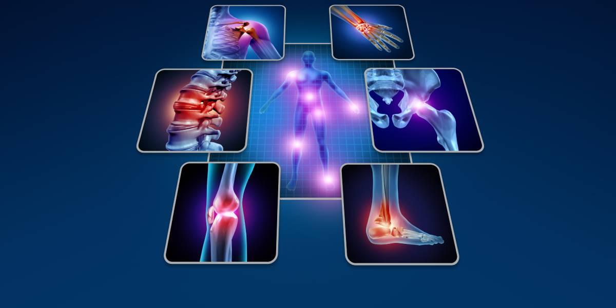 11 Empfehlungen gegen Bewegungsschmerzen