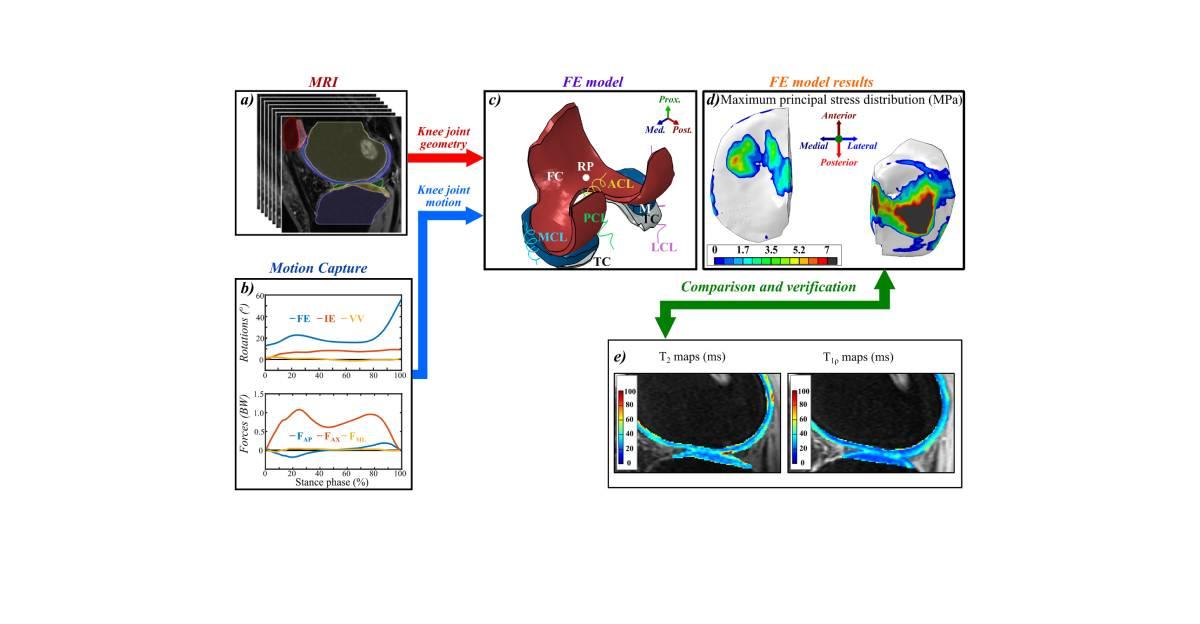 Finite-Elemente-Model (FEM) sagt posttraumatisches Arthroserisiko voraus