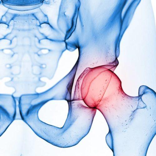 Leistenschmerzen im Leistungssport: Ursachen, Prävention, Therapie