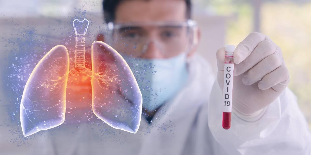 """Positionspapier """"Return to Sport"""" während der aktuellen Coronavirus-Pandemie (SARS-CoV-2 / COVID-19)"""