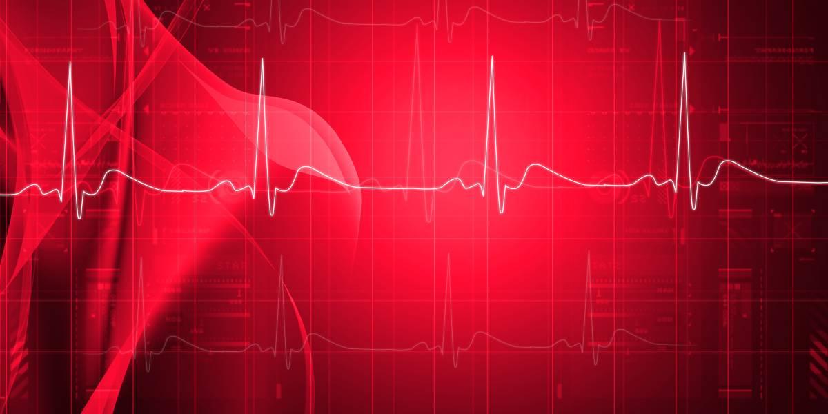 Risikobasiertes Herz-Screening auch bei jungen Athleten?