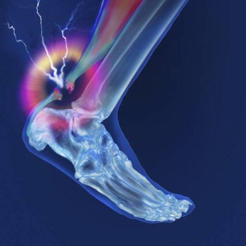 Tendinopathie der Achillessehne: Steroid- oder Plasma-Injektionen ergänzen exzentrisches Training