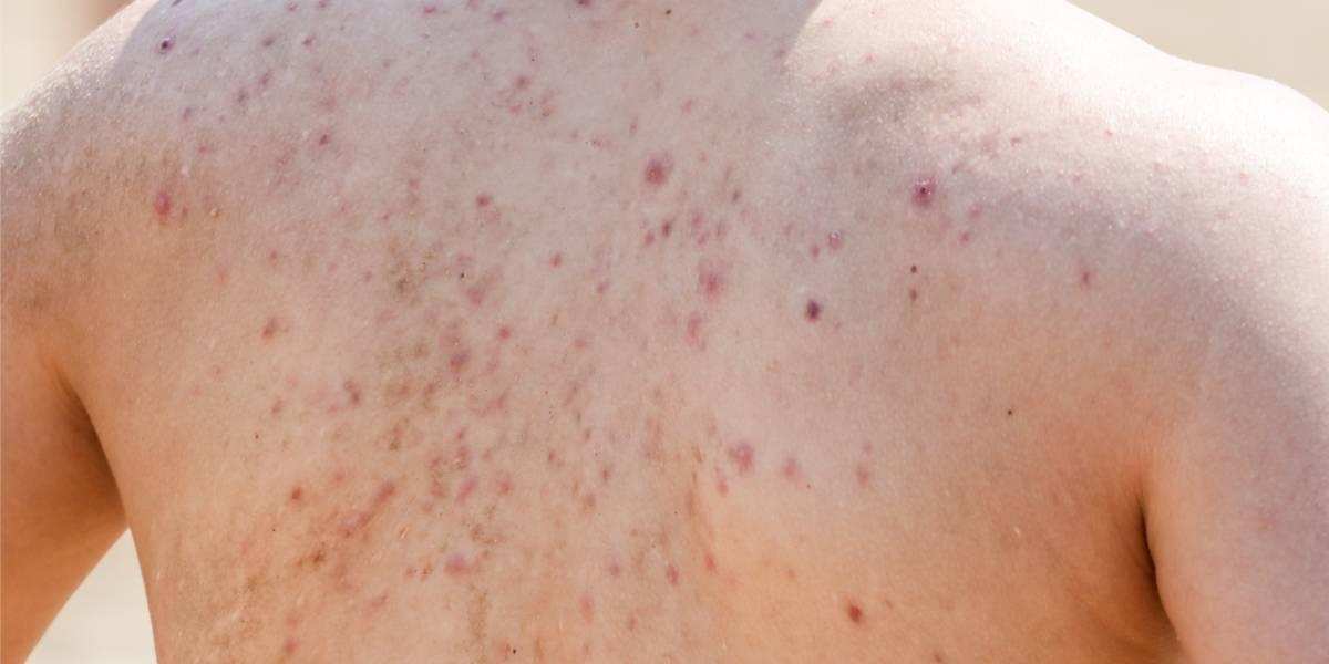 Auftreten von Dermatosen bei (Hochleistungs-)Sportlern
