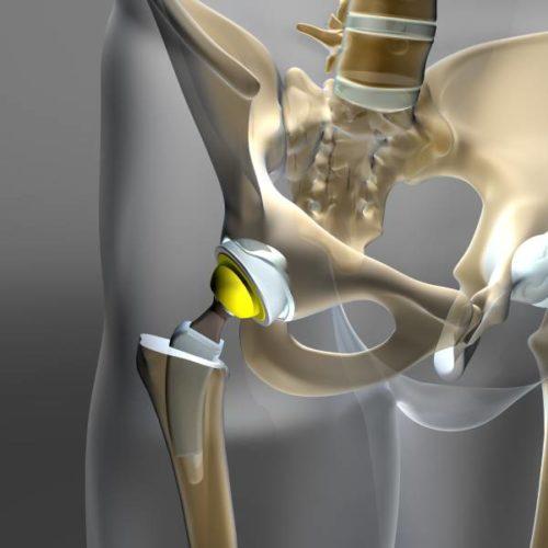 Totalendoprothese: Mehr Mut zum High-Impact-Sport