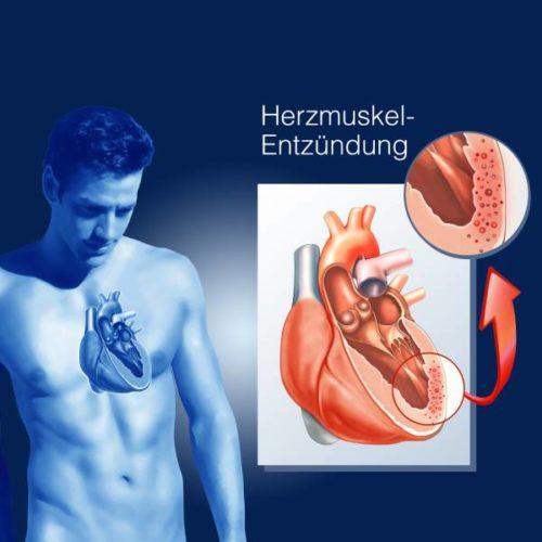 Myokarditis-Risiko nach COVID-19 geringer als gedacht