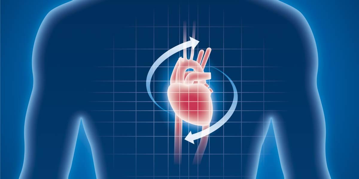 Intrakardiales Lipom in der Sportmedizin: ein klinischer Fallbericht